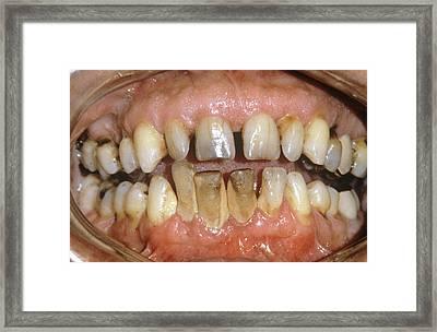 Dental Tartar Framed Print by Dr. J.p. Casteyde/cnri