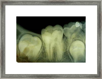 Dental X-ray Framed Print by Dr. J.p. Casteyde - Cnri