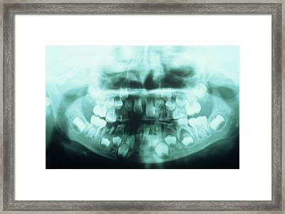 Dental X-ray Framed Print by Dr. Portier - Cnri