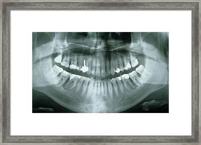 Dental X-ray Showing Fillings Framed Print by Gjlp - Cnri