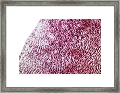 Dentine Framed Print by Overseas/collection Cnri/spl