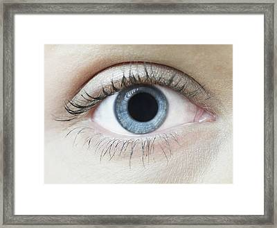 Dilated Pupil Framed Print by Science Photo Library