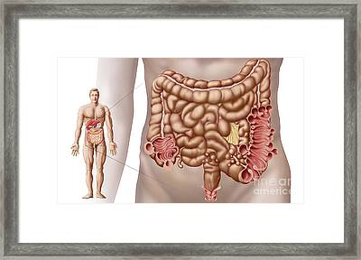 Diverticulitis In The Descending Colon Framed Print by Stocktrek Images