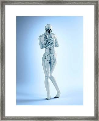 Female Skeletal Anatomy Framed Print by Andrzej Wojcicki