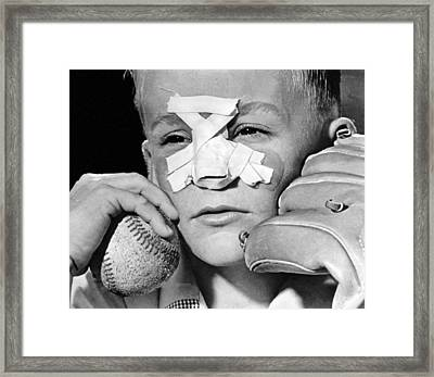 Fly Ball Gives Broken Nose Framed Print by Underwood Archives