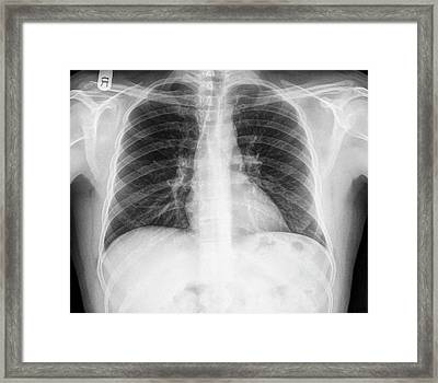 Fractured Rib Framed Print by Photostock-israel