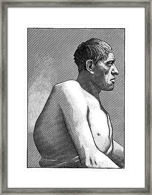 Gigantism And Acromegaly Framed Print by Science Photo Library
