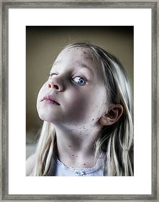 Girl With Chickenpox Framed Print by Samuel Ashfield