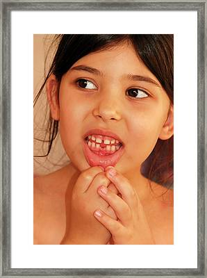 Girl With Missing Tooth Framed Print by Photostock-israel