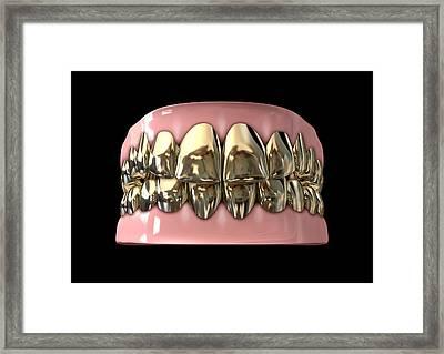 Golden Gangster Teeth And Gums Framed Print by Allan Swart