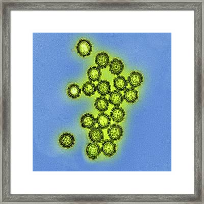 H1n1 Swine Flu Virus Framed Print by National Institute Of Allergy And Infectious Diseases (niaid)/national Institutes Of Health
