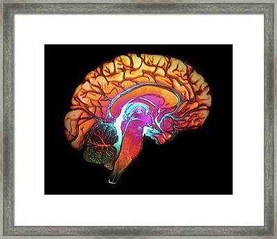 Human Brain Framed Print by Gjlp/cnri