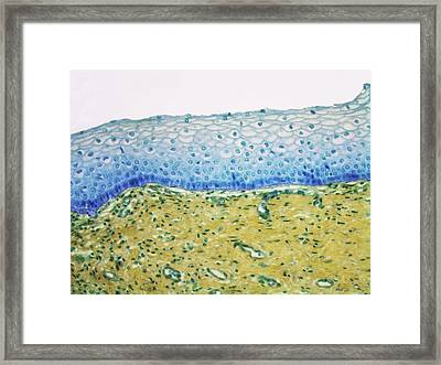 Human Vagina Framed Print by Steve Gschmeissner