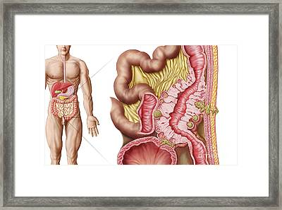 Illustration Of Diverticulosis Framed Print by Stocktrek Images