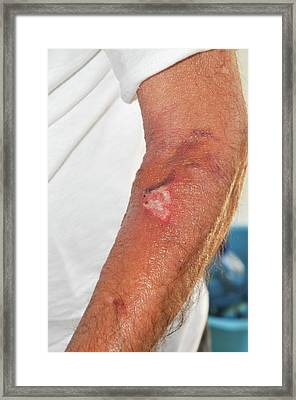 Infected Wound Framed Print by Photostock-israel