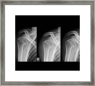 Injured Shoulder Framed Print by Zephyr