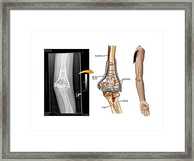 Internal Fixation Of Fractured Elbow Framed Print by John T. Alesi