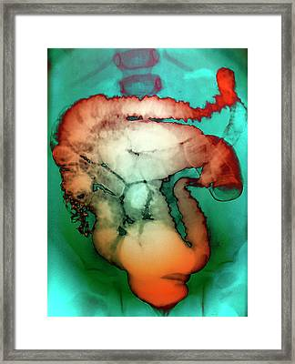 Intussusception Of The Intestines Framed Print by Zephyr