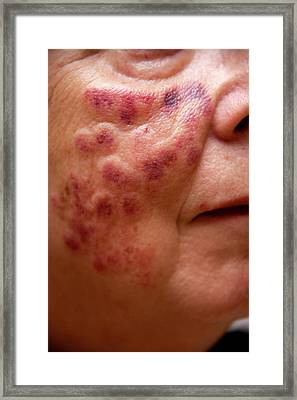 Laser Treatment For Age Spots Framed Print by Lea Paterson