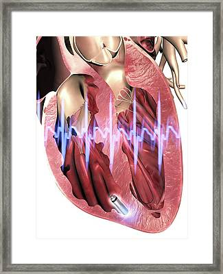 Leadless Pacemaker In Anterior Heart Framed Print by Alfred Pasieka