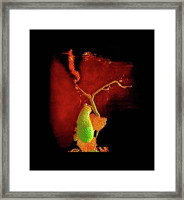 Liver Disorder Framed Print by Anders Persson, Cmiv
