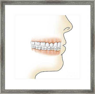 Lower Gums With Braces And Plaque Framed Print by TriFocal Communications