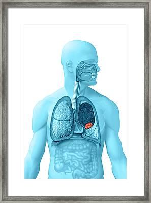 Lung Cancer Framed Print by Carol & Mike Werner