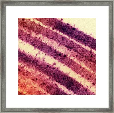 Lung Collagen Framed Print by Ami Images