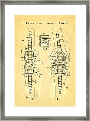 Martinez Knee Implant Prosthesis Patent Art 1974 Framed Print by Ian Monk