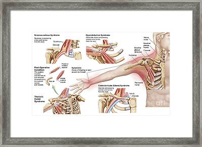 Medical Illustration Detailing Thoracic Framed Print by Stocktrek Images