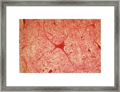 Multipolar Neuron Framed Print by Overseas/collection Cnri/spl