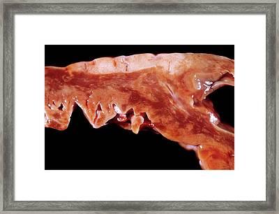 Myocarditis Framed Print by Pr. M. Forest - Cnri