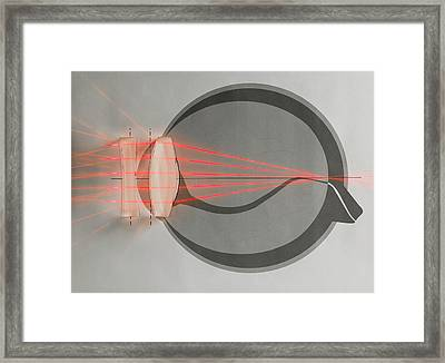 Optics Of Corrected Near-sightedness Framed Print by Science Photo Library