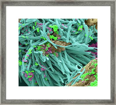 Oral Bacteria Framed Print by Steve Gschmeissner