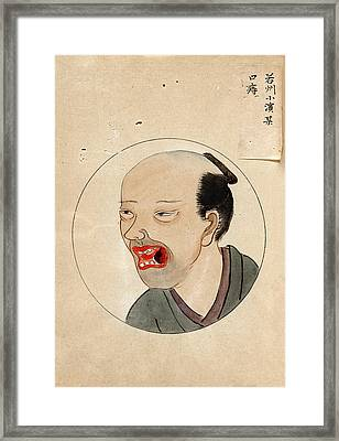 Oral Cancer Patient Framed Print by National Library Of Medicine
