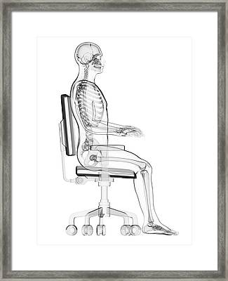 Person Sitting With Incorrect Posture Framed Print by Sebastian Kaulitzki