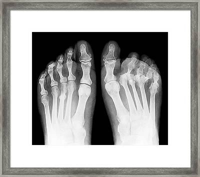 Rheumatoid Arthritis Of The Feet Framed Print by Zephyr
