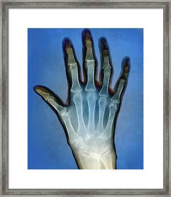 Rheumatoid Arthritis Of The Hand Framed Print by Zephyr