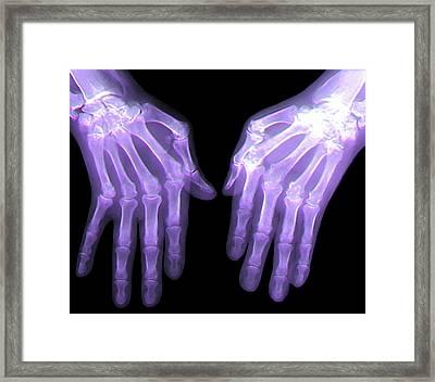 Rheumatoid Arthritis Of The Hands Framed Print by Zephyr