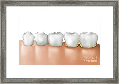 Row Of Teeth Showing Gingivitis Framed Print by TriFocal Communications