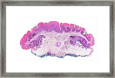 Seborrhoeic Keratosis Framed Print by Microscape
