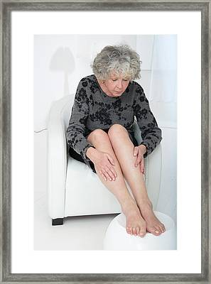 Senior Woman Touching Her Legs Framed Print by Lea Paterson