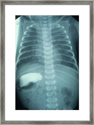 Situs Inversus In A Child Framed Print by Cnri