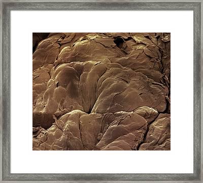 Skin Mole Framed Print by Steve Gschmeissner