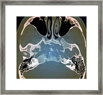 Skull In Erdheim-chester Disease Framed Print by Zephyr