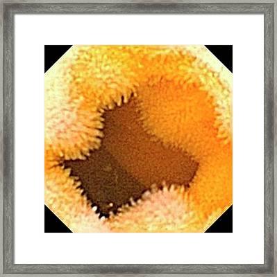 Small Intestine Framed Print by Gastrolab