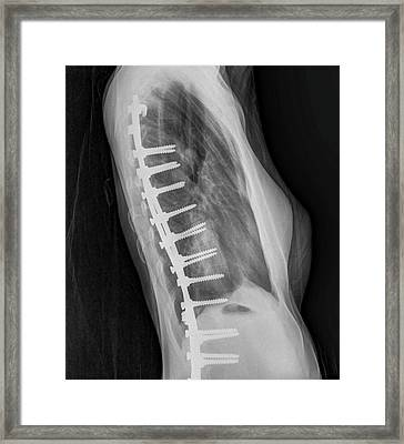 Spinal Fusion Framed Print by Photostock-israel