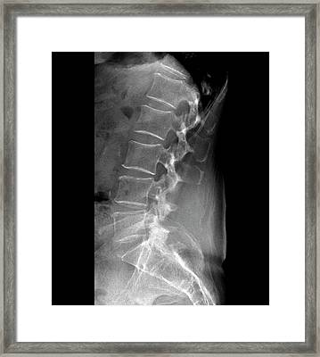 Spinal Stenosis After Surgery Framed Print by Zephyr