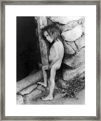 Starving Child Framed Print by Underwood Archives