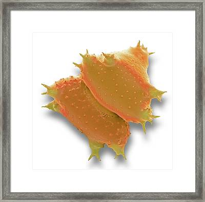 Staurastrum Desmid Framed Print by Steve Gschmeissner